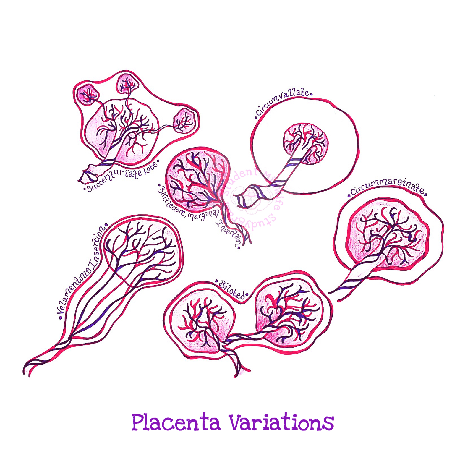 abnormalities of placenta and cord pdf