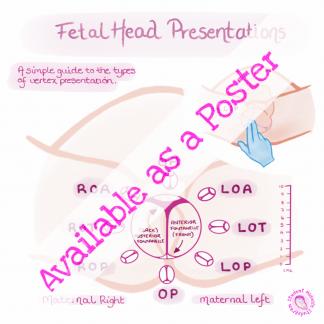 Vertex Presentations Poster
