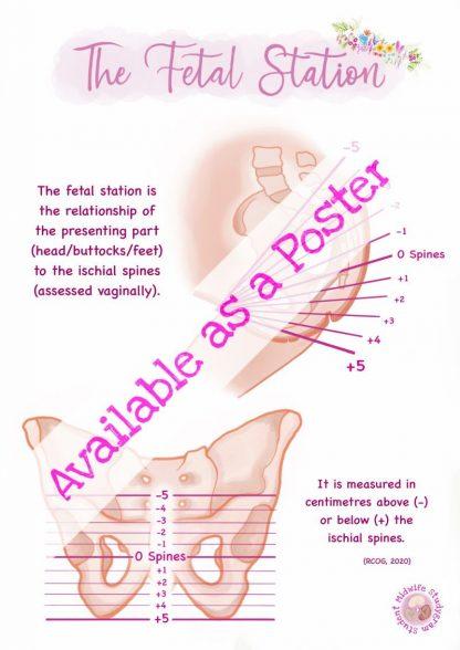 Fetal Station Poster