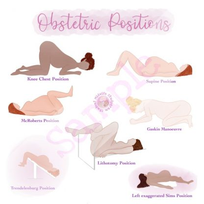 Obstetric Positions Flashcard